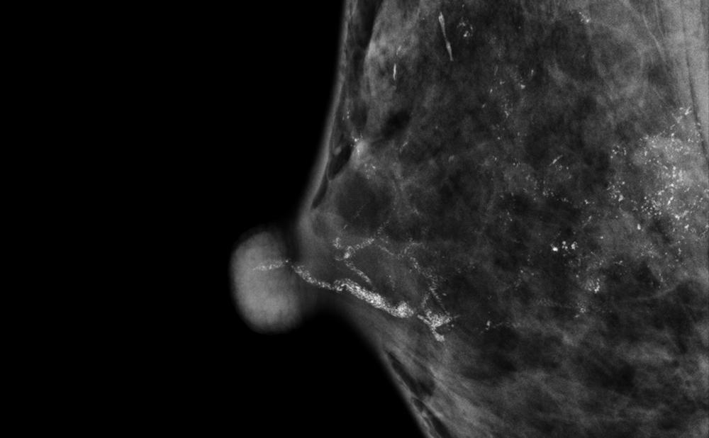 brustkrebs carcinoma in situ