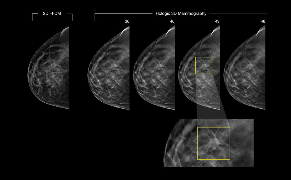 Phyllodes Tumors of the Breast Symptoms and Diagnosis